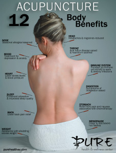 12 body benefits to receiving acupuncture in Anthem