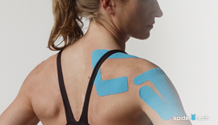 A Guide to Kinesiology Taping from our Own SpiderTech Expert