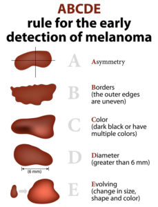 ABCDE of skin cancer detection