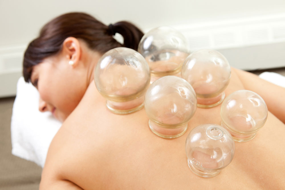 Is Cupping Just for Athletes?